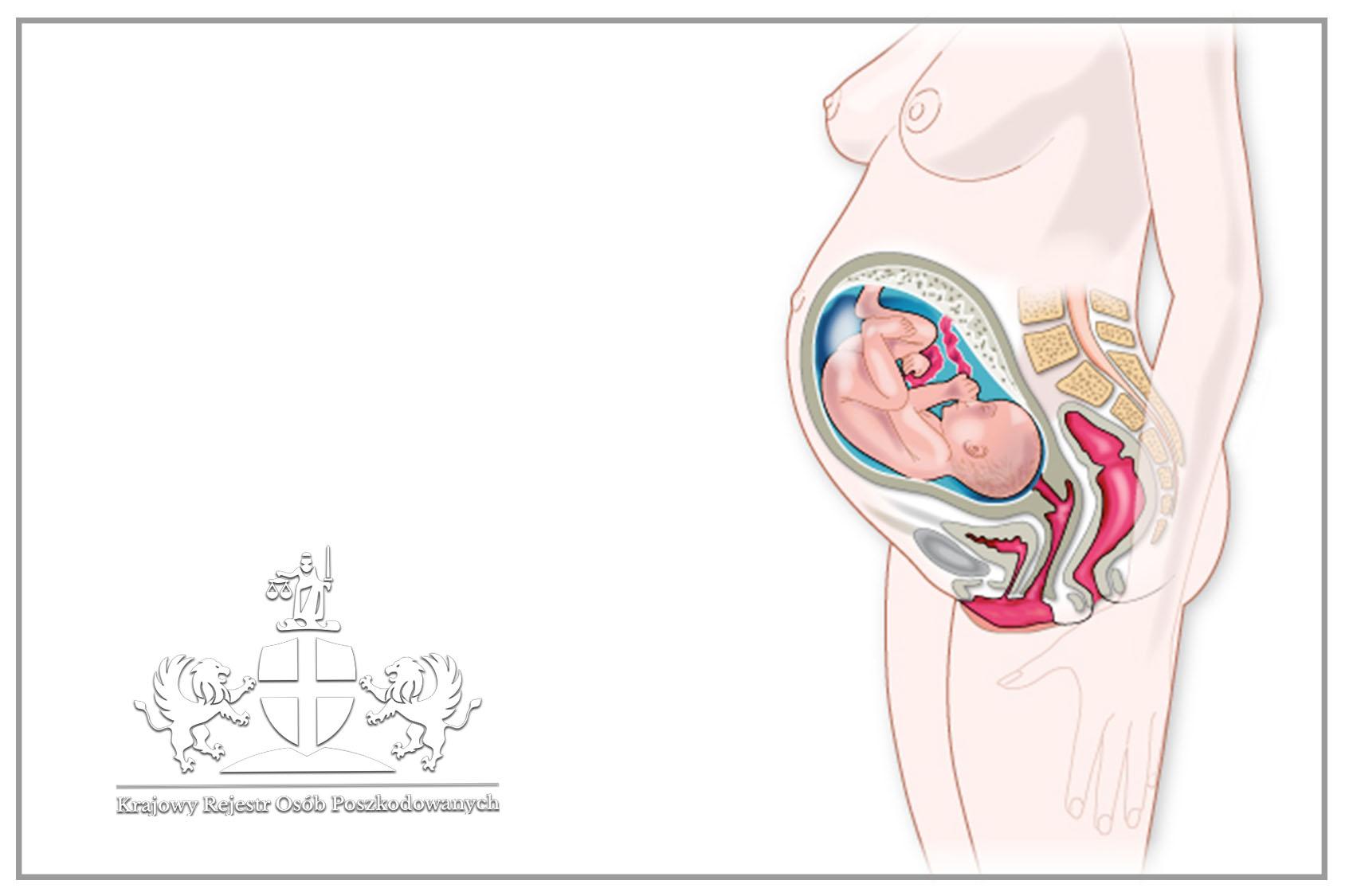 Wady wrodzone narządów płciowych i dolnego odcinka układu pokarmowego Wady wrodzone narządów płciowych i dolnego odcinka układu pokarmowego budzą w rodzicach niepokój oraz lęk o przyszłość dziecka. Martwisz się o swoje dziecko? Jesteś w ciąży i chcesz dowiedzieć się czegoś więcej na temat zagrożeń? Ten artykuł jest dla Ciebie! Dowiedz się więcej o zagrożeniach związanych z wadami narządów płciowych oraz dolnego odcinka układu pokarmowego u noworodków. Wady wrodzone narządów płciowych i dolnego odcinka układu pokarmowego – wada Zastawki Cewki Tylnej (ZCT) Wada Zastawki Cewki Tylnej oznacza nadmierny przerost błony śluzowej między ścianą cewki błoniastej, a wzgórkiem nasiennym, co utrudnia odpływ moczu u chłopców. Wada występuje u 1:5000–8000 żywo urodzonych noworodków płci męskiej. Rodzaj i nasilenie zależą od: wieku pacjenta, stopnia zaburzeń odpływu moczu (objawy przeszkodowe), towarzyszących zakażeń układu moczowego (ZUM). Objawami są: utrudniona mikcja, powiększony obwód brzucha, ZUM, uszkodzenie nerek, wymioty, nadmierny spadek masy ciała, żółtaczka, niedokrwistość, zły stan ogólny, czasem gorączka. Wada może zostać zdiagnozowana już w okresie prenatalnym, podczas standardowego badania USG. Po porodzie wykonuje się następujące badania diagnostyczne: • cystouretrografia mikcyjna, • USG jamy brzusznej, • renoscyntygrafia • oraz badania laboratoryjne (badanie ogólne i posiew moczu, oznaczenie stężenia kreatyniny oraz mocznika) Czas i rodzaj leczenia ustala zespół złożony z: chirurga, urologa, neonatologa, anestezjologa. Wady wrodzone narządów płciowych i dolnego odcinka układu pokarmowego – zespół wynicowania kloaki Wynicowanie kloaki dotyczy 1:300 000 urodzeń, ryzyko wystąpienia wady jest jednakowe u obu płci. Objawami są: wynicowanie centralnie położonej kątnicy oraz bocznie położonych 2 połówek pęcherza moczowego, wypadanie jelita cienkiego przez zastawkę krętniczo-kątniczą, nieprawidłowe rozwinięcie jelita grubego, szeroki rozstęp spojenia łonowego, przepuklina